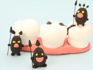 歯虫歯-2